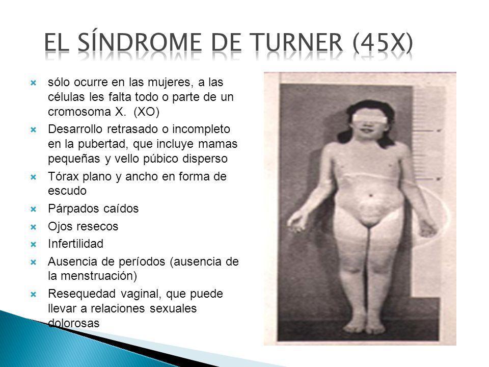 EL SÍNDROME DE TURNER (45X)
