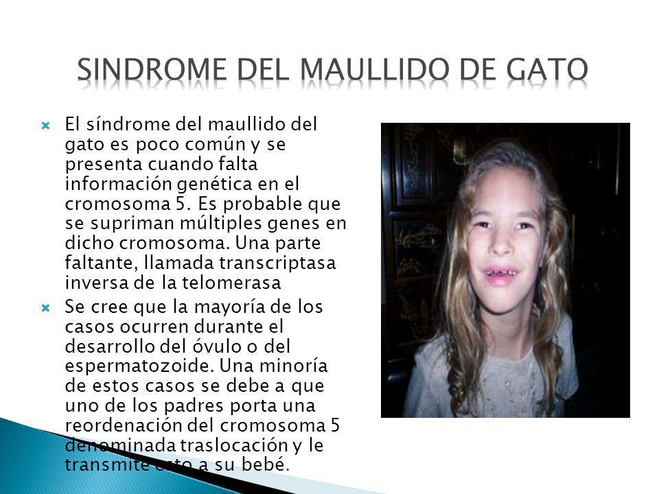 SINDROME DEL MAULLIDO DE GATO