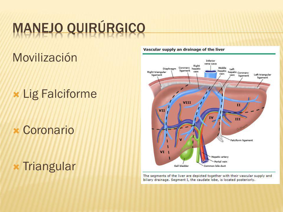 Manejo quirúrgico Movilización Lig Falciforme Coronario Triangular