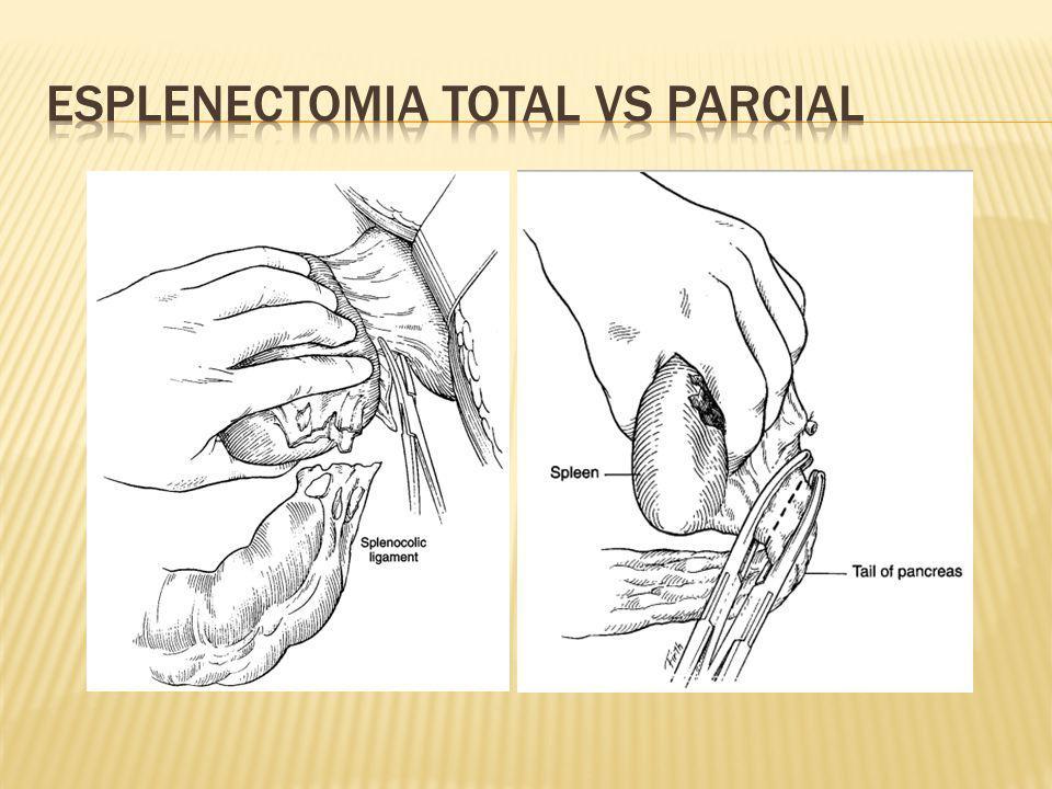 Esplenectomia total vs parcial