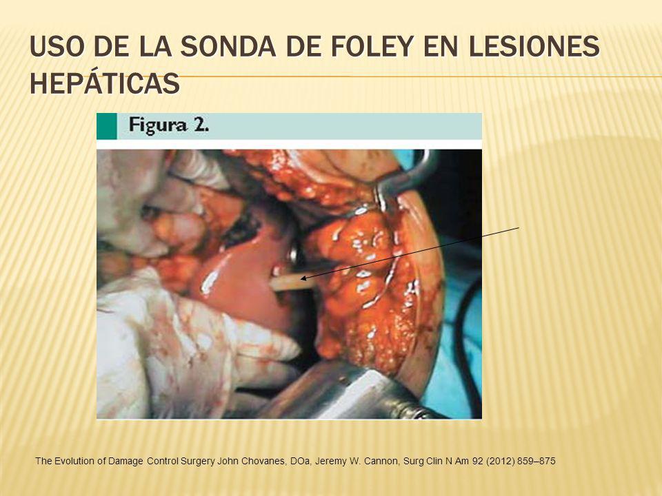 USO DE LA SONDA DE FOLEY EN LESIONES HEPÁTICAS