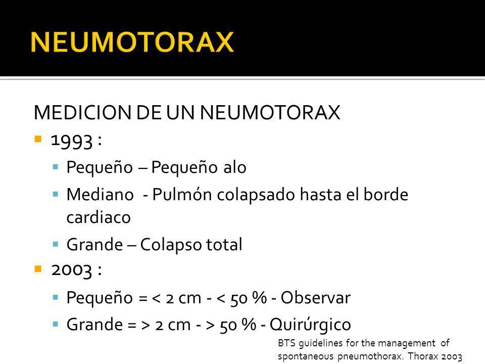 NEUMOTORAX MEDICION DE UN NEUMOTORAX 1993 : 2003 :