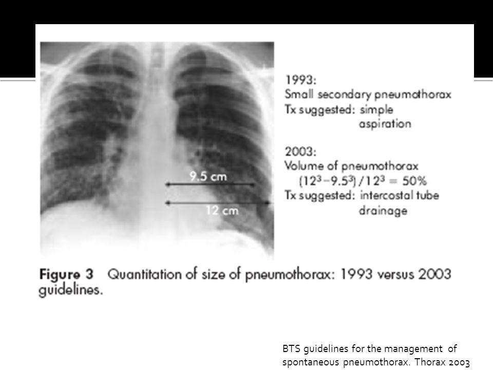 BTS guidelines for the management of spontaneous pneumothorax