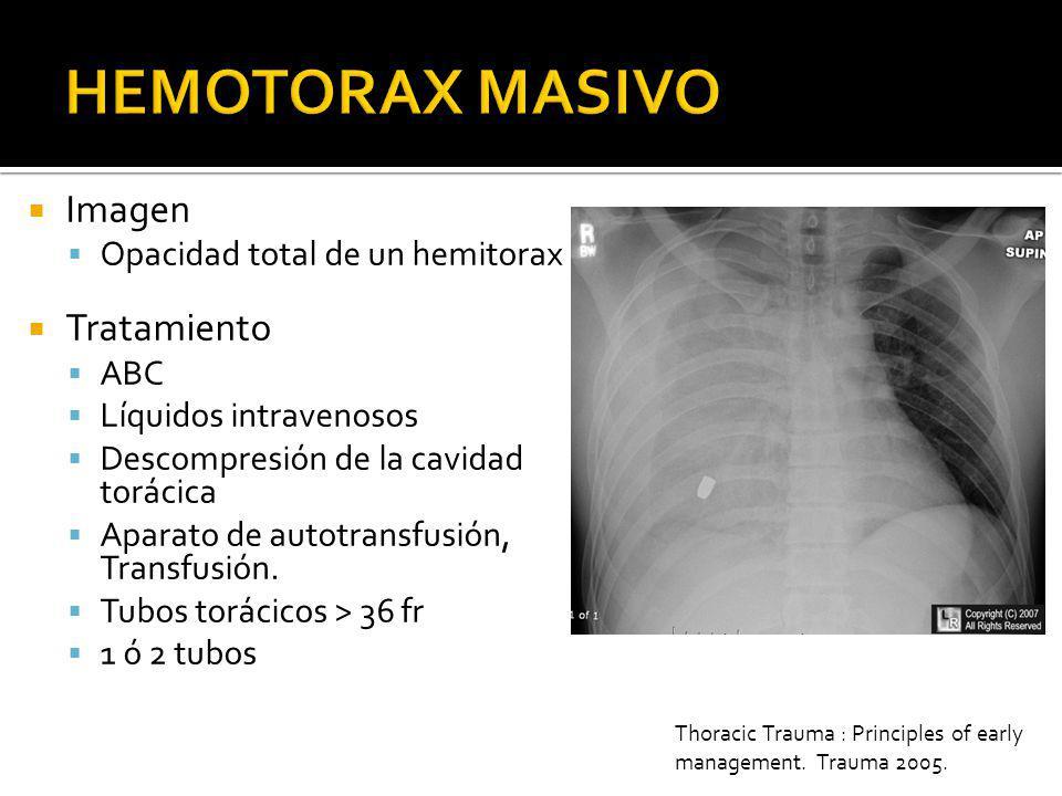 HEMOTORAX MASIVO Imagen Tratamiento Opacidad total de un hemitorax ABC