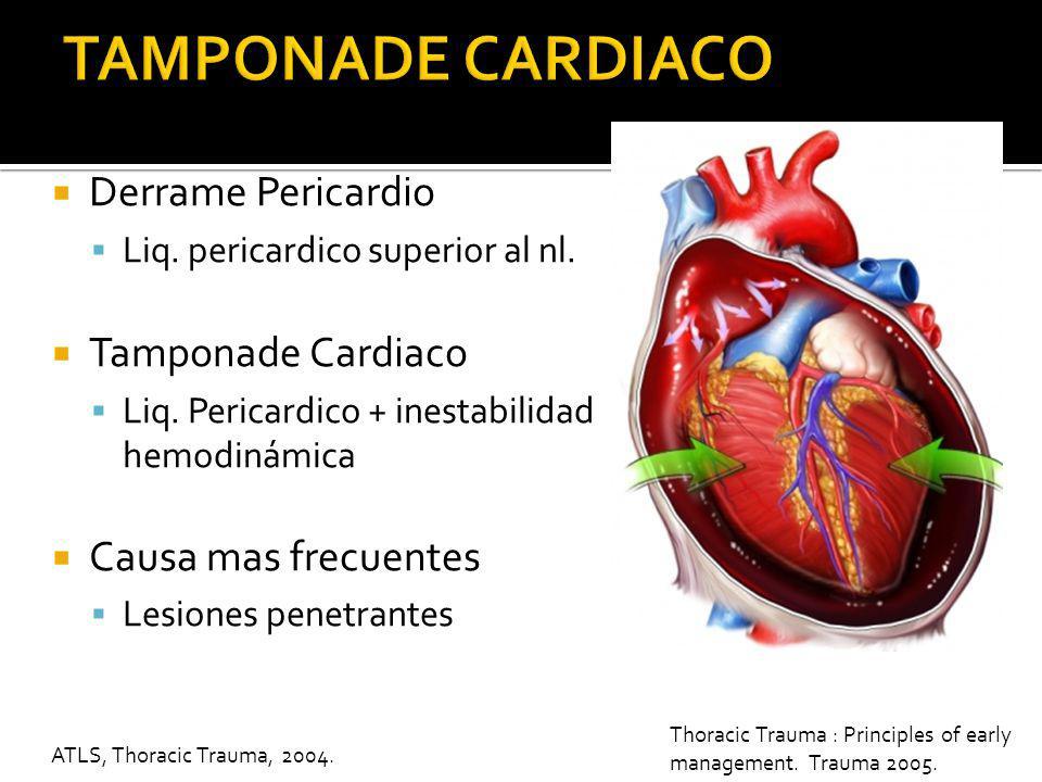 TAMPONADE CARDIACO Derrame Pericardio Tamponade Cardiaco