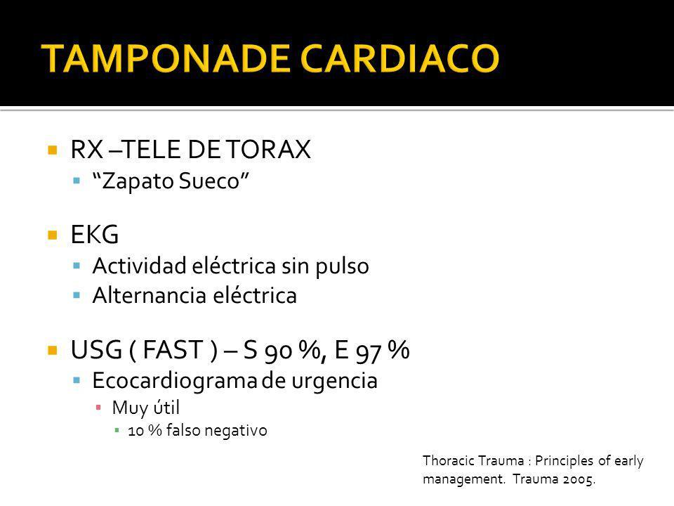 TAMPONADE CARDIACO RX –TELE DE TORAX EKG USG ( FAST ) – S 90 %, E 97 %
