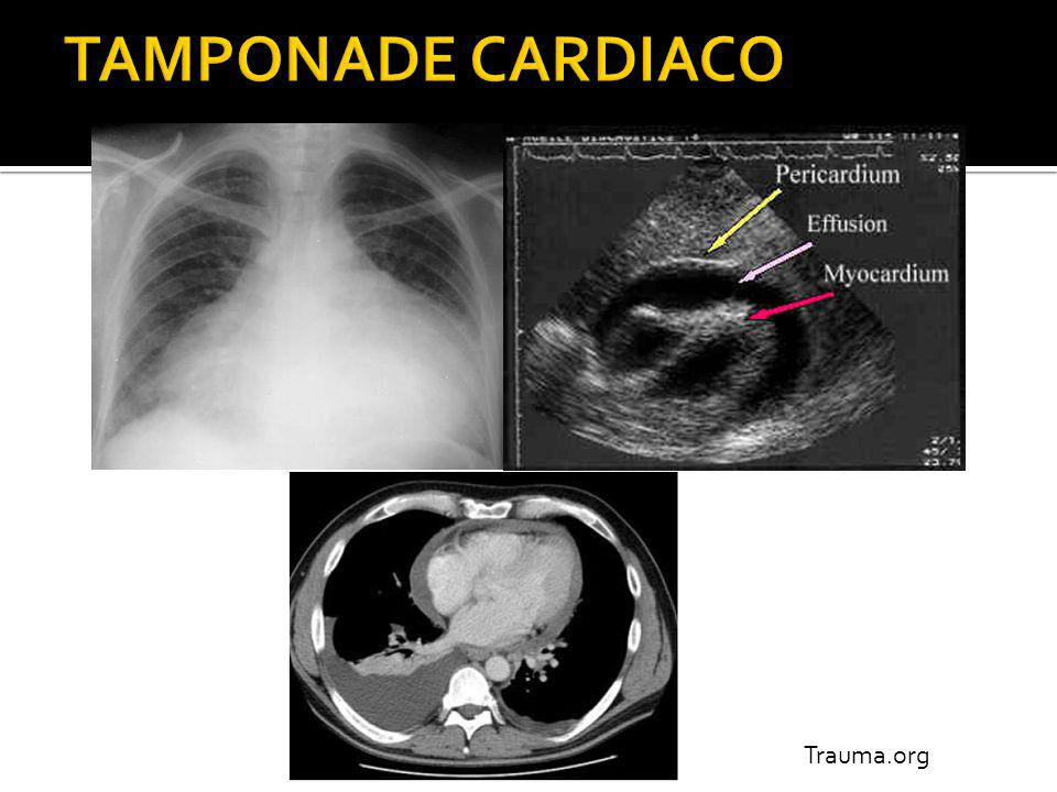 TAMPONADE CARDIACO Trauma.org