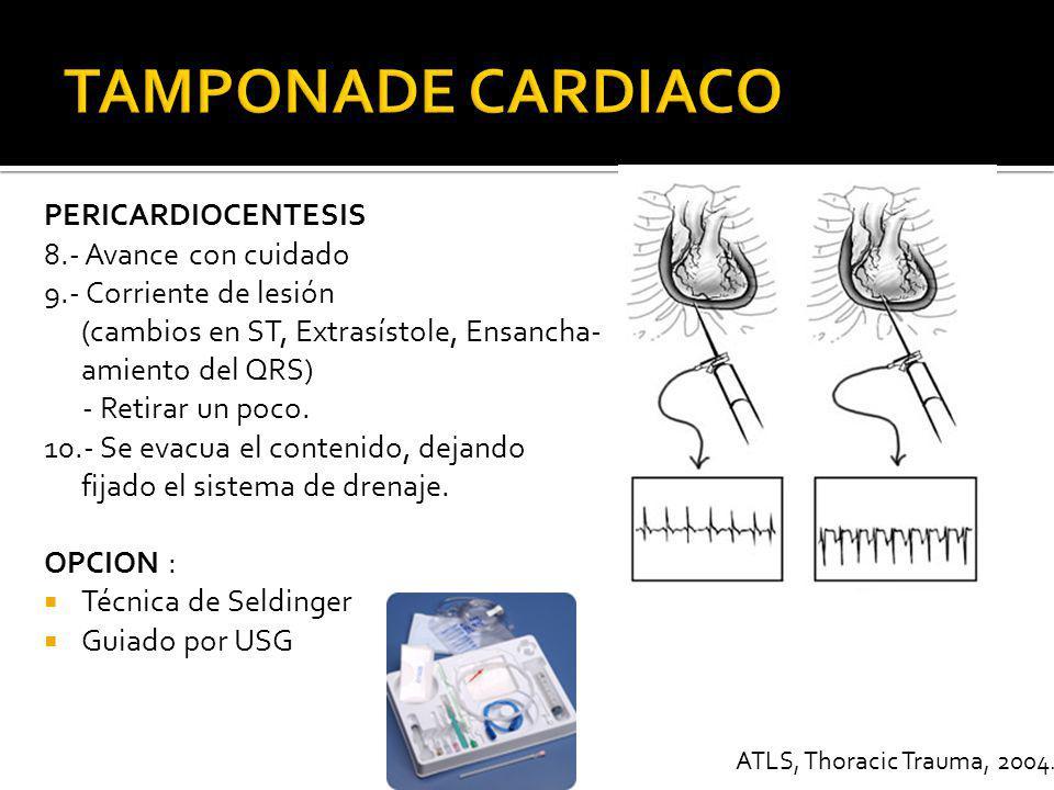 TAMPONADE CARDIACO PERICARDIOCENTESIS 8.- Avance con cuidado