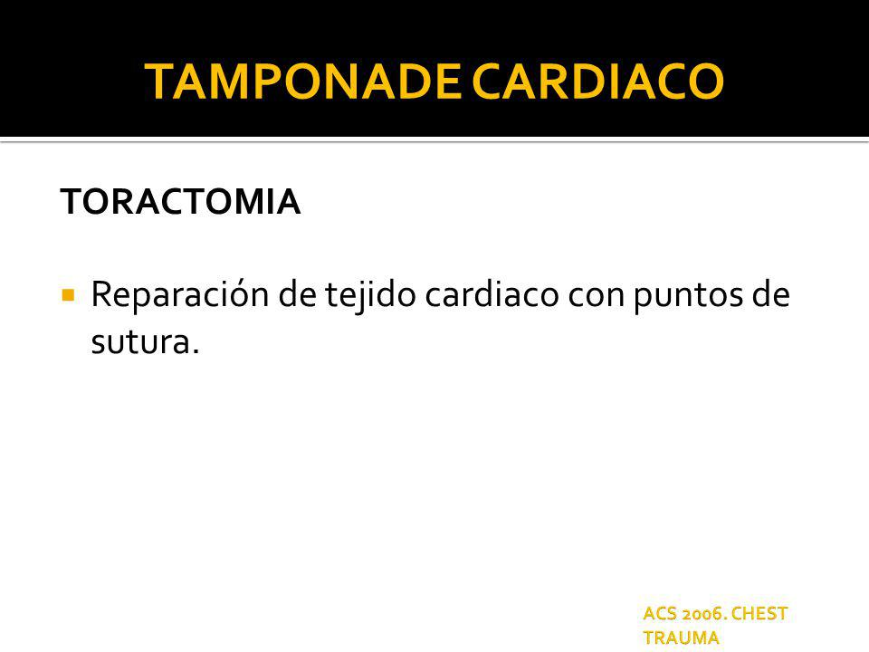 TAMPONADE CARDIACO TORACTOMIA