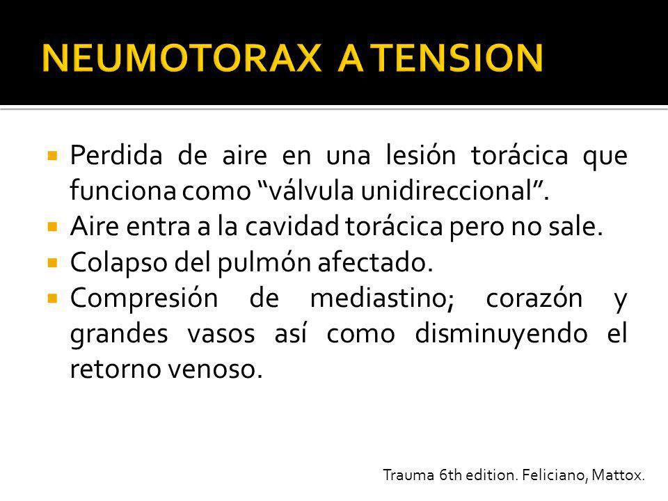 NEUMOTORAX A TENSION Perdida de aire en una lesión torácica que funciona como válvula unidireccional .