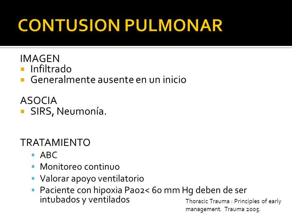 CONTUSION PULMONAR IMAGEN Infiltrado Generalmente ausente en un inicio
