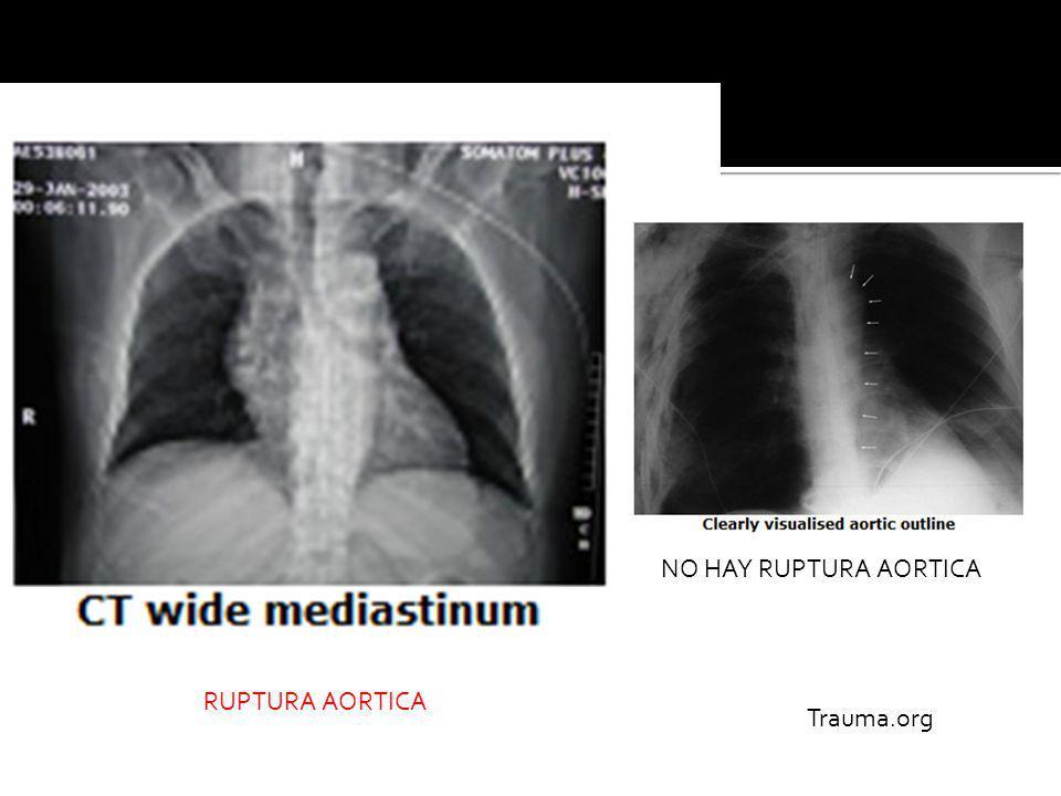 NO HAY RUPTURA AORTICA RUPTURA AORTICA Trauma.org