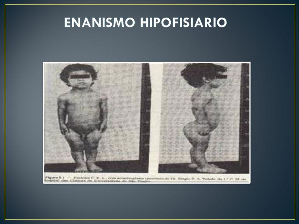 ENANISMO HIPOFISIARIO