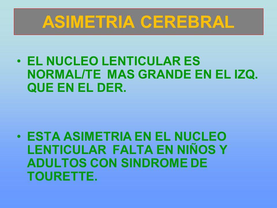 ASIMETRIA CEREBRAL EL NUCLEO LENTICULAR ES NORMAL/TE MAS GRANDE EN EL IZQ. QUE EN EL DER.