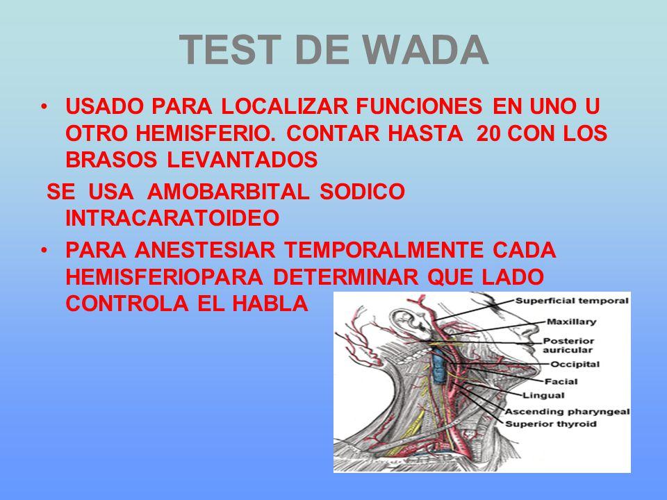 TEST DE WADA USADO PARA LOCALIZAR FUNCIONES EN UNO U OTRO HEMISFERIO. CONTAR HASTA 20 CON LOS BRASOS LEVANTADOS.