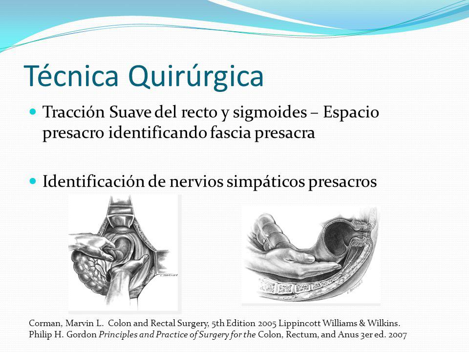 Técnica Quirúrgica Tracción Suave del recto y sigmoides – Espacio presacro identificando fascia presacra.
