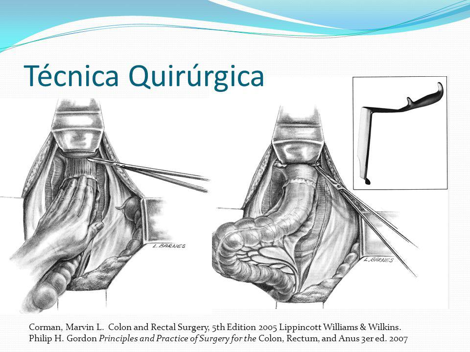 Técnica Quirúrgica Corman, Marvin L. Colon and Rectal Surgery, 5th Edition 2005 Lippincott Williams & Wilkins.
