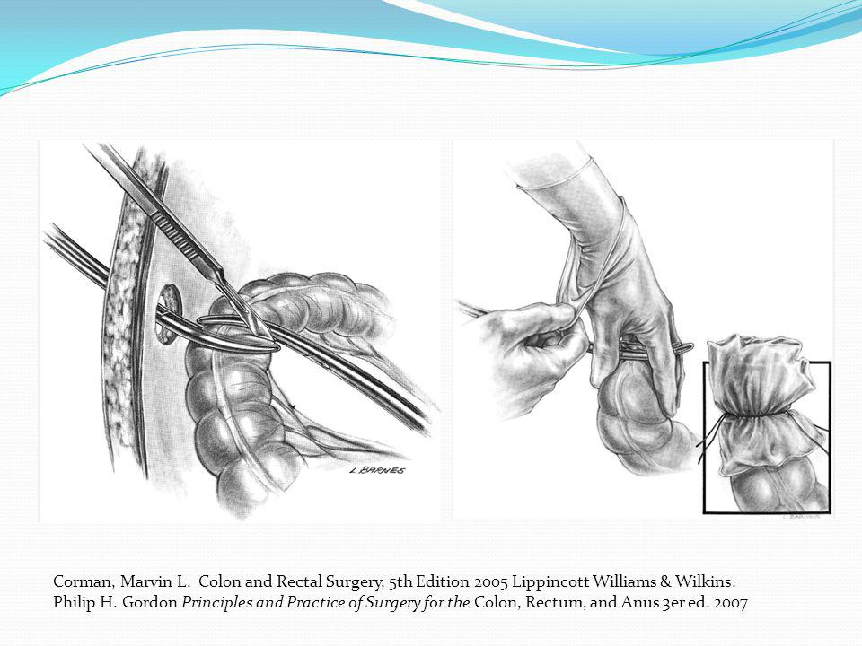 Corman, Marvin L. Colon and Rectal Surgery, 5th Edition 2005 Lippincott Williams & Wilkins.