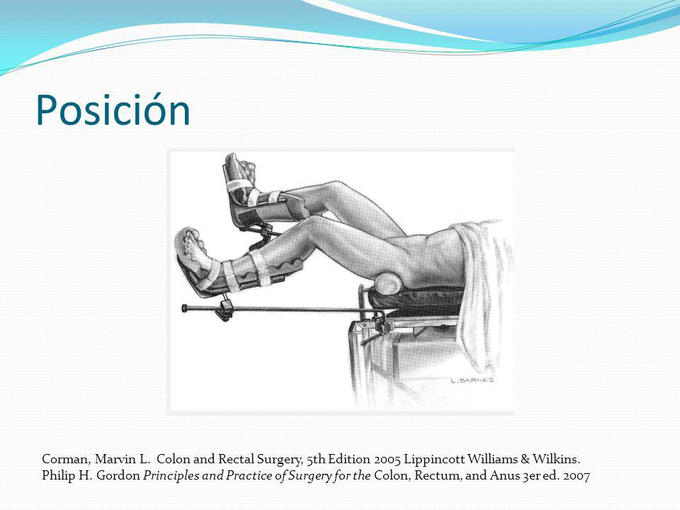 Posición Corman, Marvin L. Colon and Rectal Surgery, 5th Edition 2005 Lippincott Williams & Wilkins.