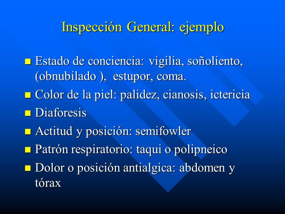 Inspección General: ejemplo