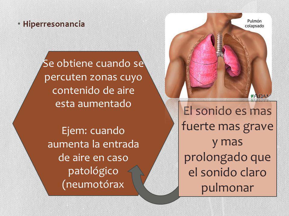 Ejem: cuando aumenta la entrada de aire en caso patológico (neumotórax