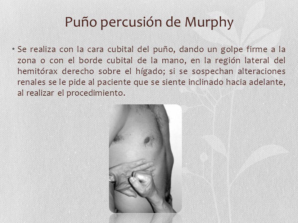 Puño percusión de Murphy