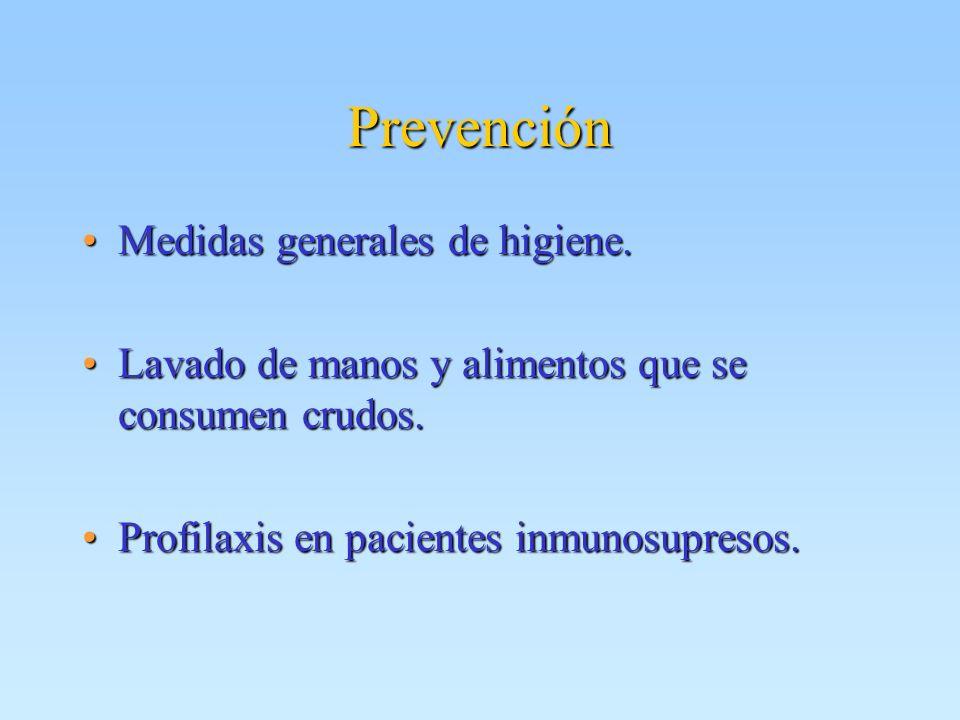 Prevención Medidas generales de higiene.
