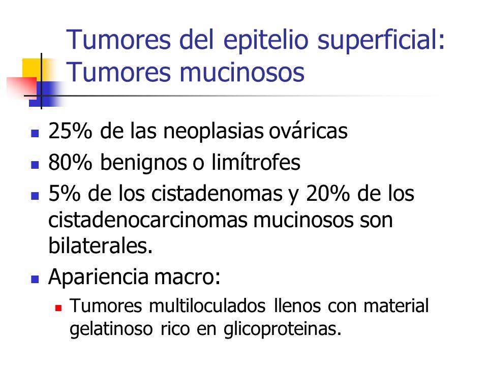 Tumores del epitelio superficial: Tumores mucinosos