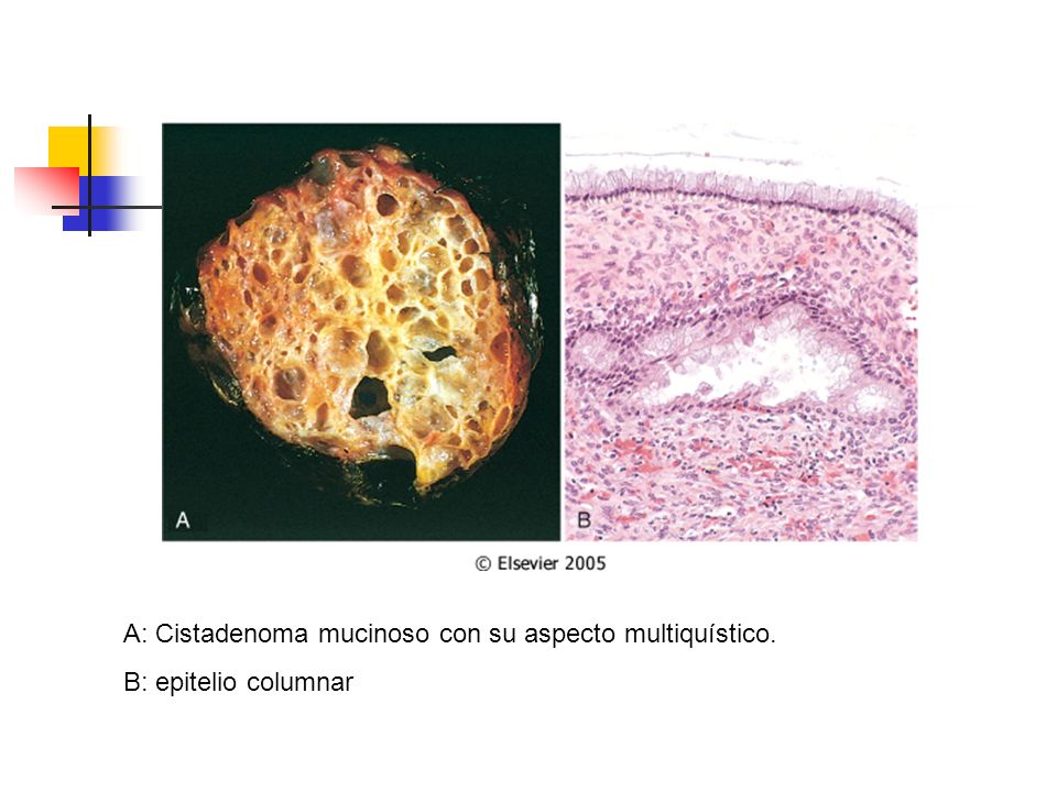 A: Cistadenoma mucinoso con su aspecto multiquístico.