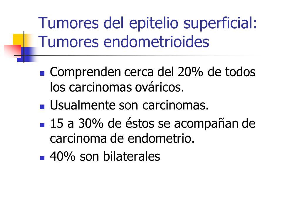 Tumores del epitelio superficial: Tumores endometrioides