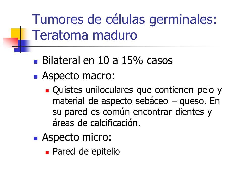 Tumores de células germinales: Teratoma maduro
