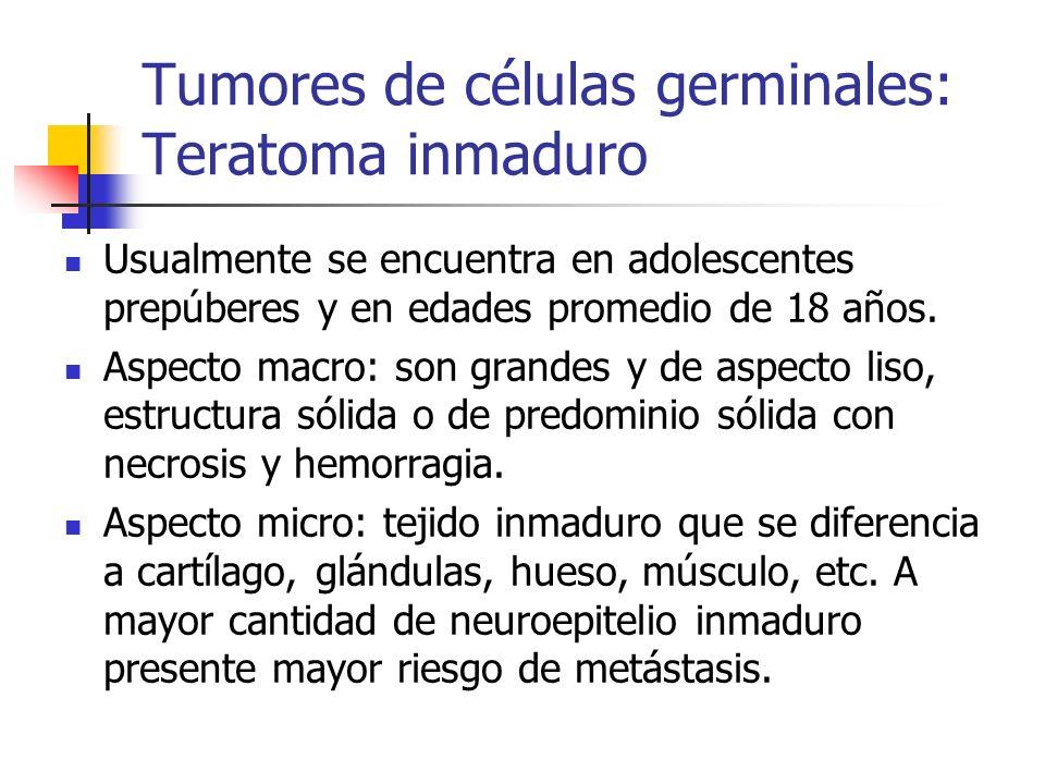 Tumores de células germinales: Teratoma inmaduro