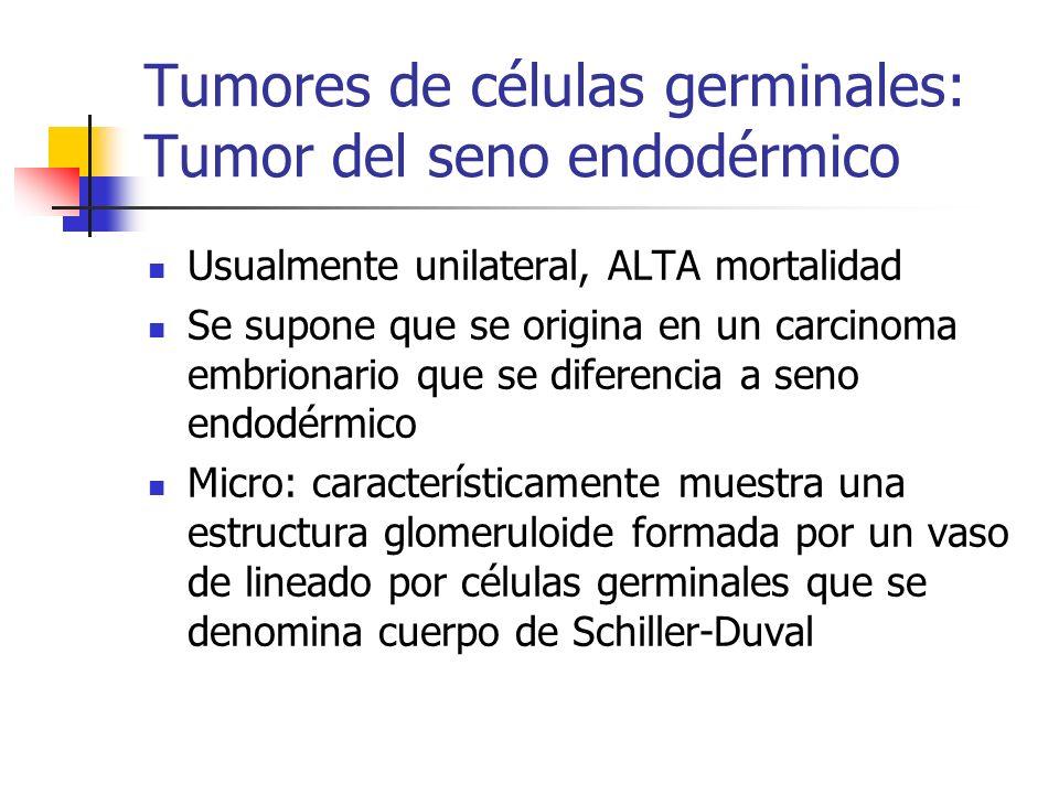 Tumores de células germinales: Tumor del seno endodérmico