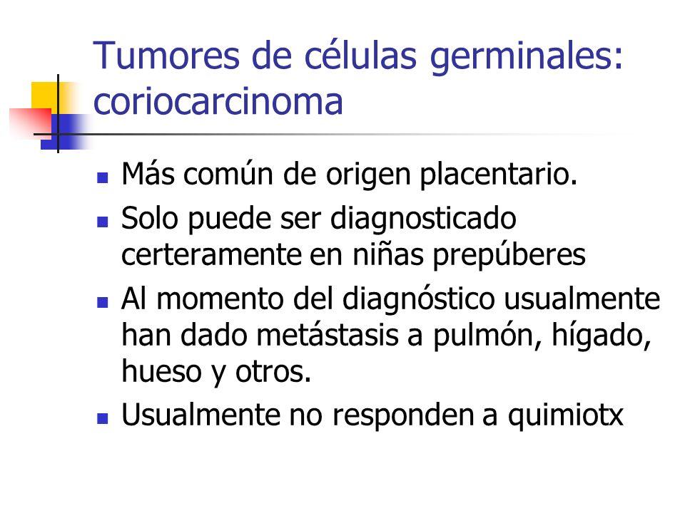 Tumores de células germinales: coriocarcinoma