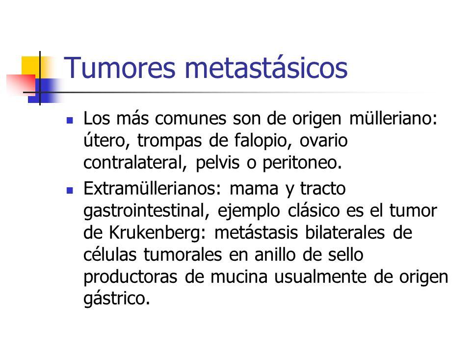 Tumores metastásicos Los más comunes son de origen mülleriano: útero, trompas de falopio, ovario contralateral, pelvis o peritoneo.