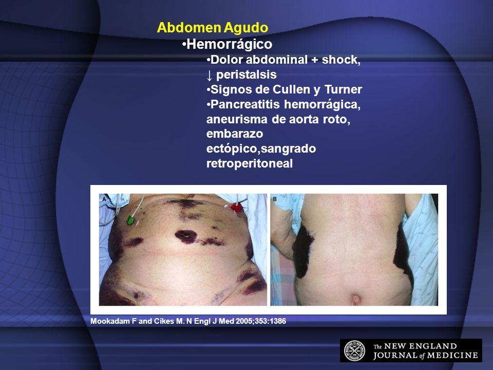 Abdomen Agudo Hemorrágico Dolor abdominal + shock, ↓ peristalsis