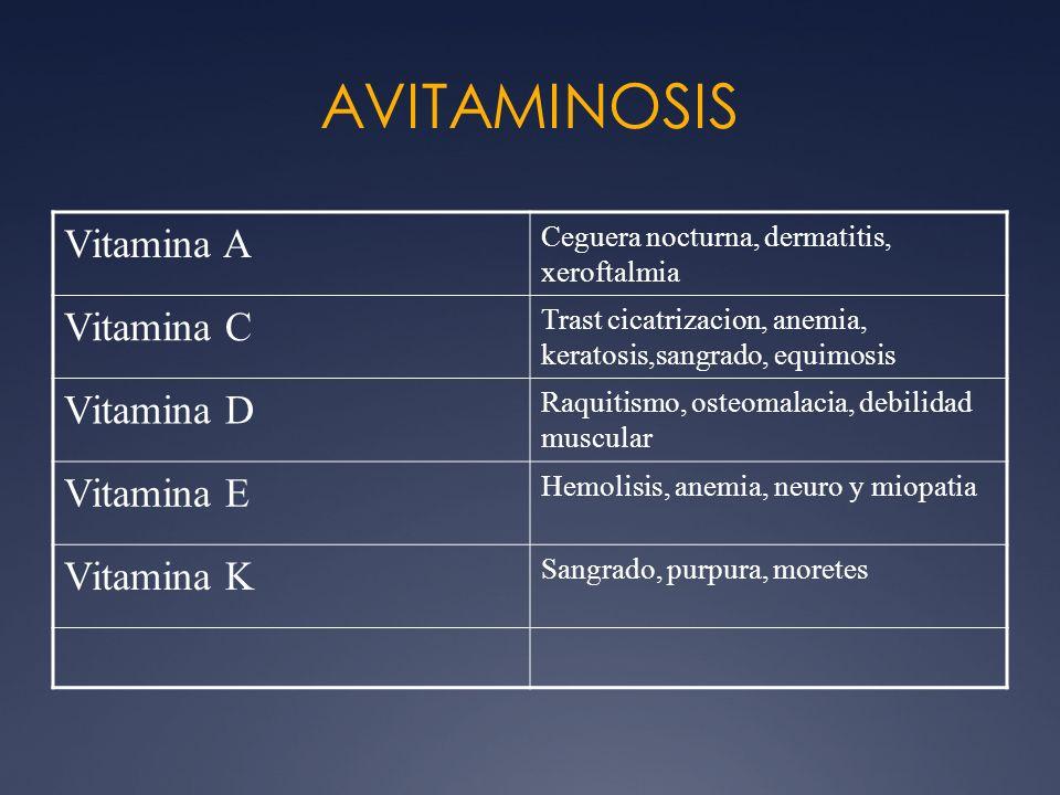 AVITAMINOSIS Vitamina A Vitamina C Vitamina D Vitamina E Vitamina K