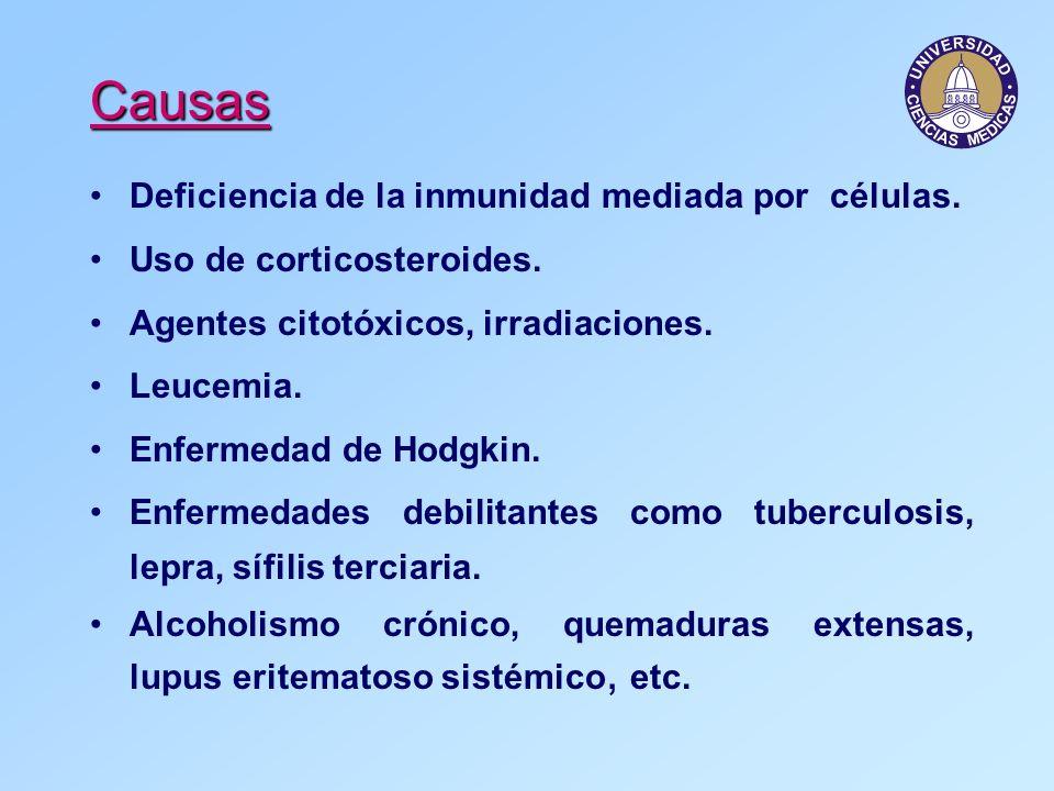 Causas Deficiencia de la inmunidad mediada por células.