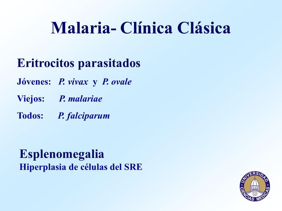 Malaria- Clínica Clásica