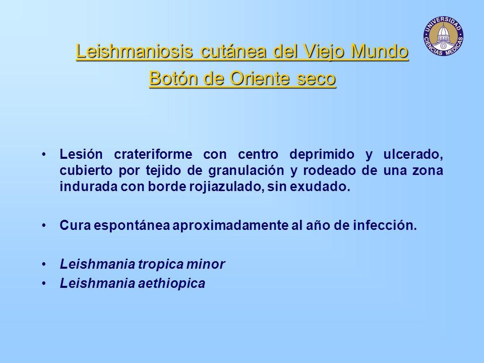 Leishmaniosis cutánea del Viejo Mundo