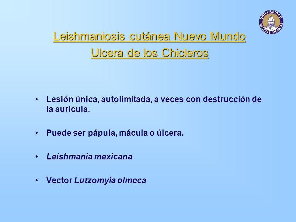 Leishmaniosis cutánea Nuevo Mundo Ulcera de los Chicleros