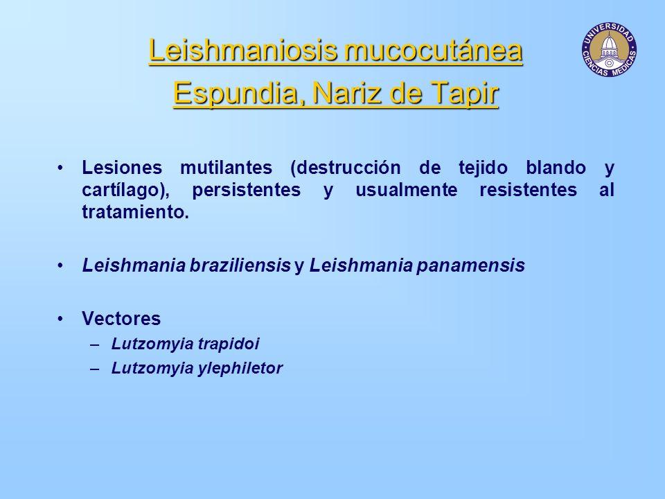 Leishmaniosis mucocutánea Espundia, Nariz de Tapir