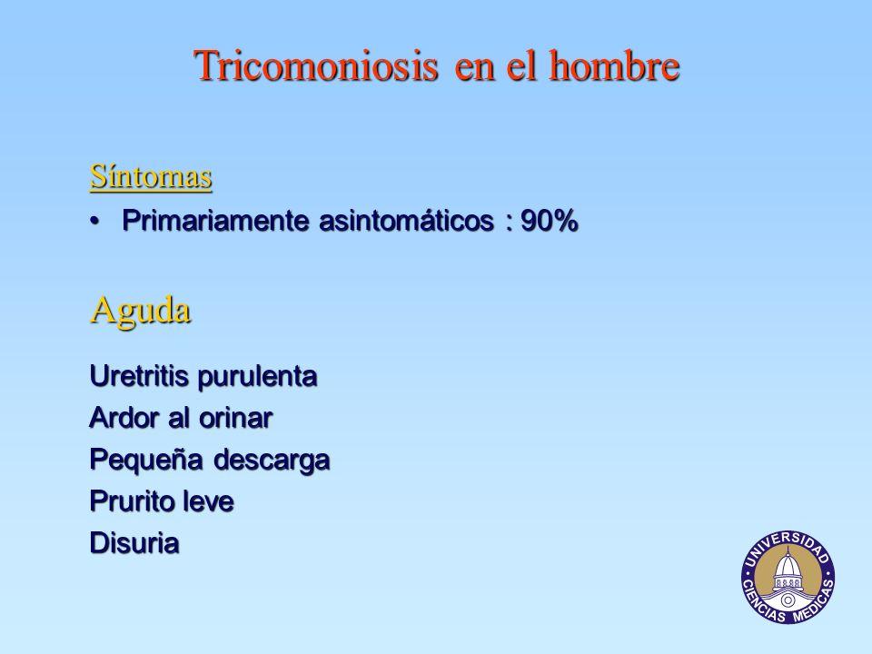Tricomoniosis en el hombre