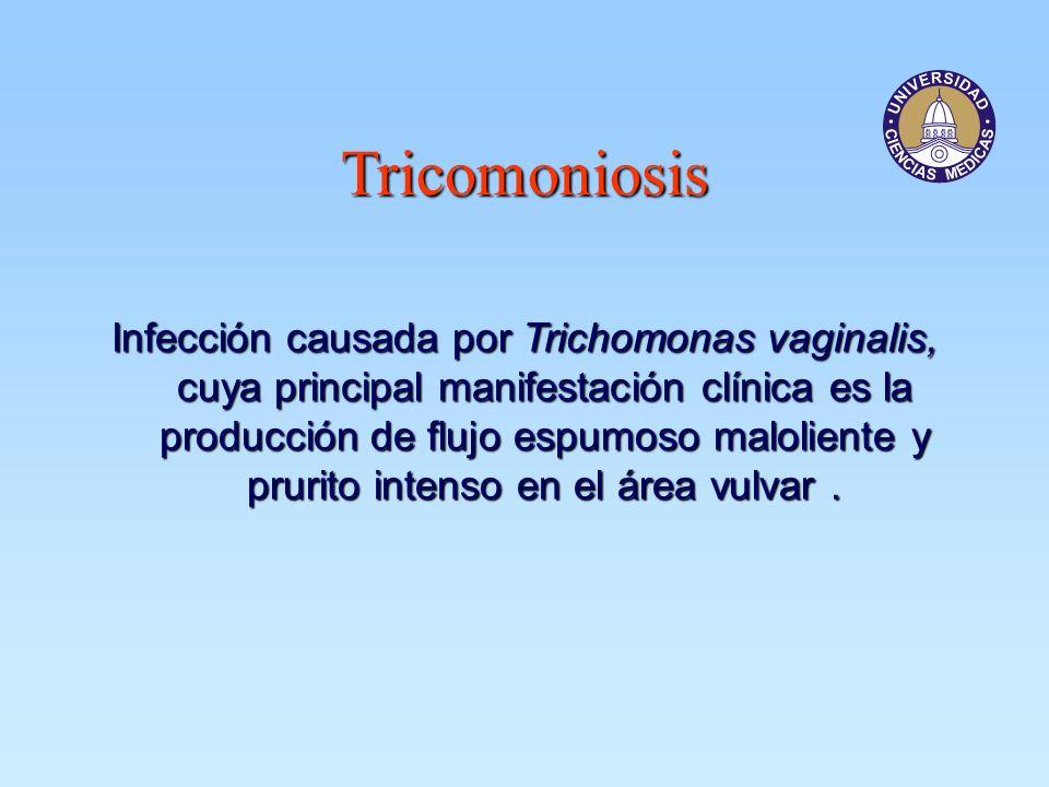 Tricomoniosis