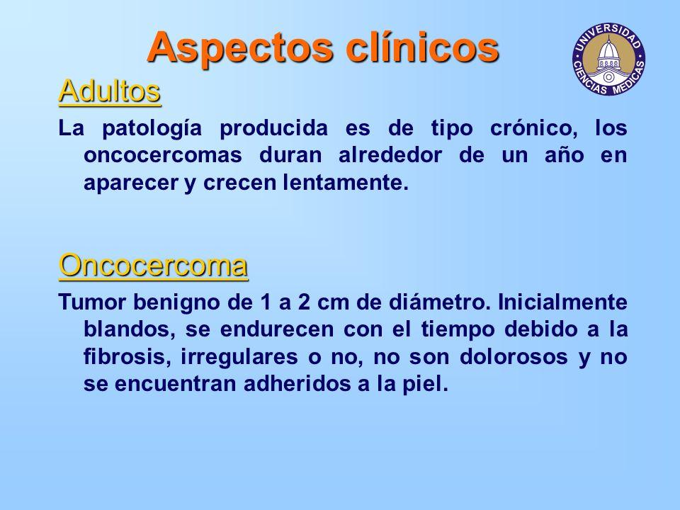 Aspectos clínicos Adultos Oncocercoma