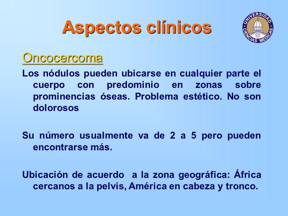Aspectos clínicos Oncocercoma