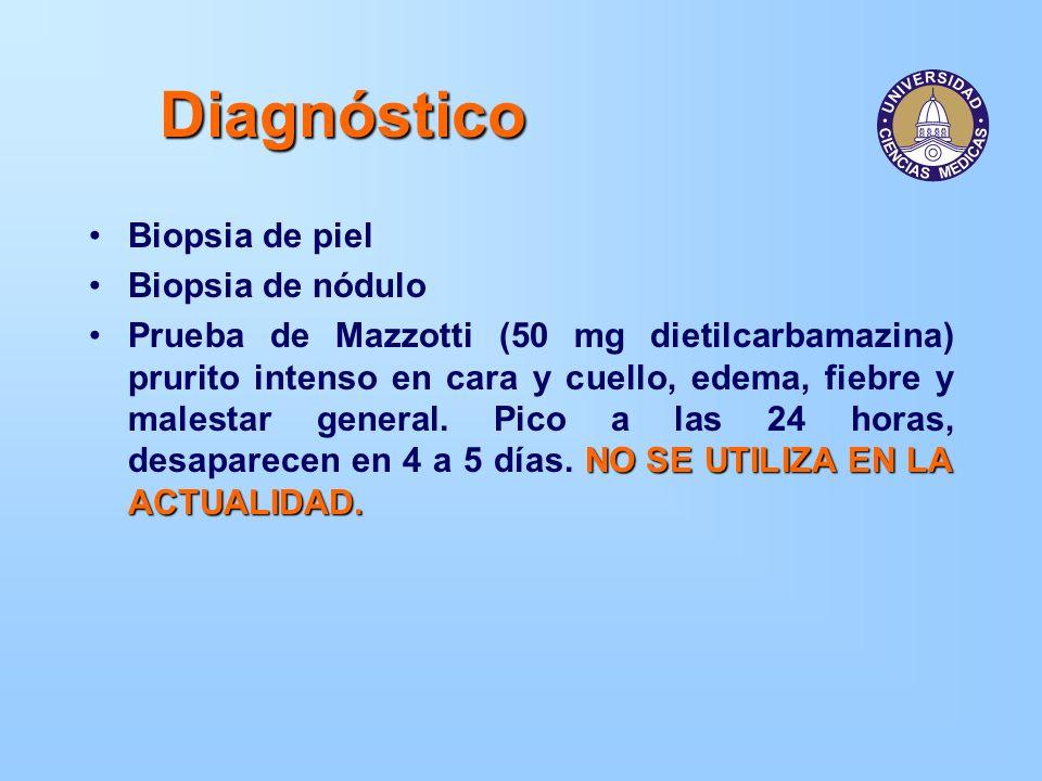Diagnóstico Biopsia de piel Biopsia de nódulo