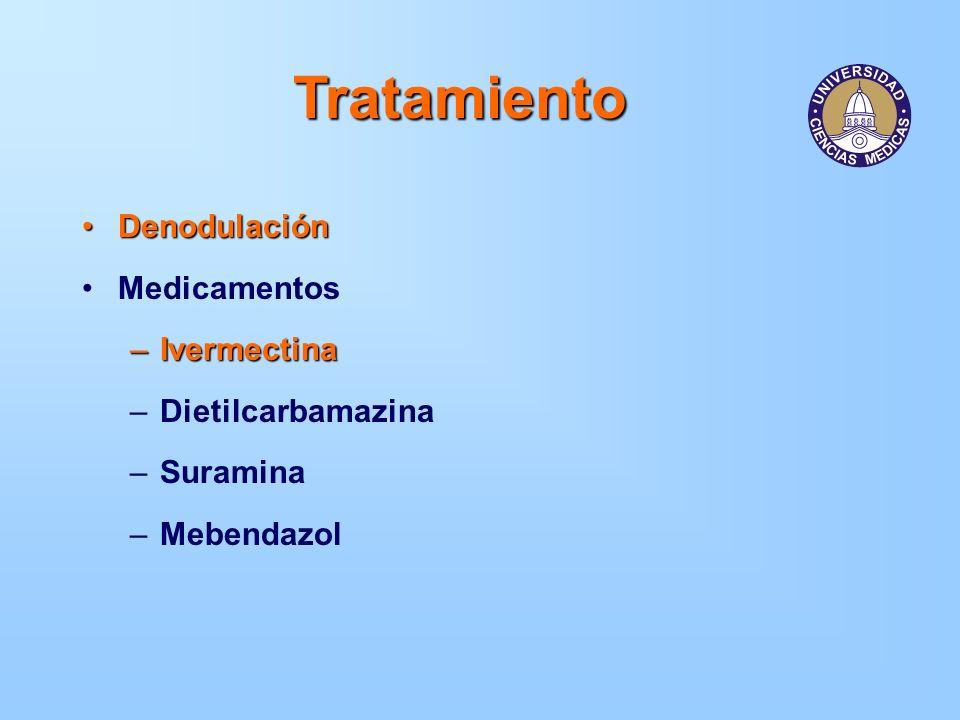 Tratamiento Denodulación Medicamentos Ivermectina Dietilcarbamazina