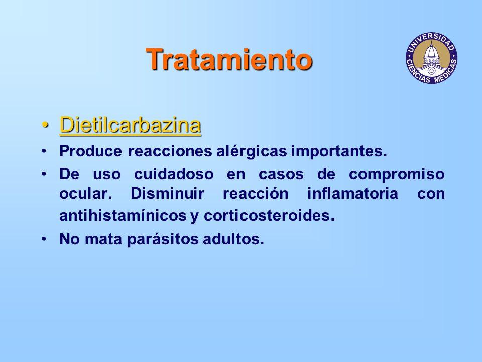 Tratamiento Dietilcarbazina Produce reacciones alérgicas importantes.