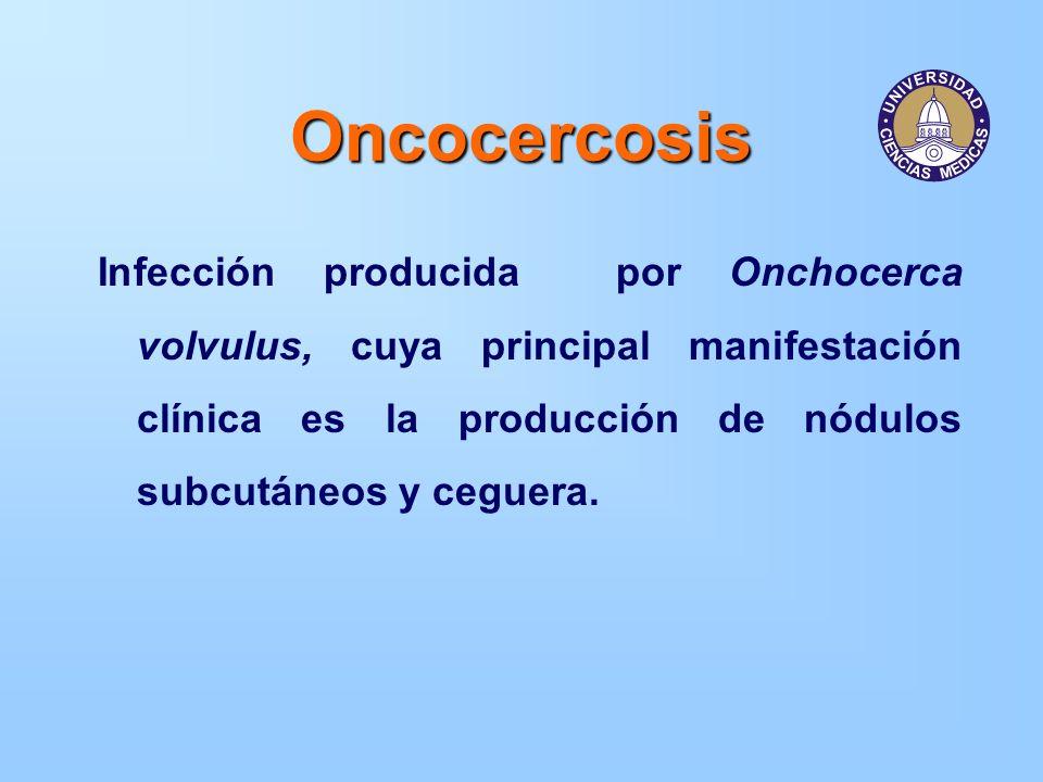 OncocercosisInfección producida por Onchocerca volvulus, cuya principal manifestación clínica es la producción de nódulos subcutáneos y ceguera.